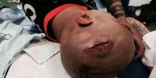 VIDEO Accidentare groaznica la un meci de fotbal: i-a spart capul pe teren